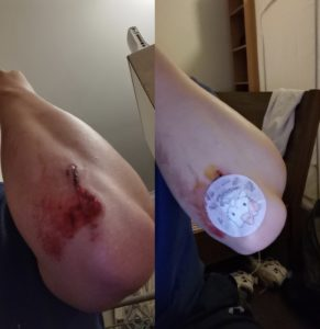 Wound in the arm